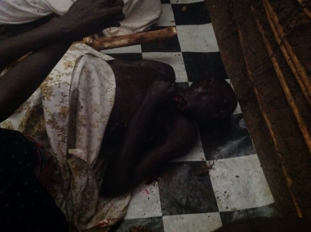 People being slaughtered and hacked like Animals, innocent children got and put in a house, a blaze of fire is set in it and burnt into ash in Rwenzururu kingdom